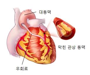 대동맥 막힌광상동맥 우회로등을 예시