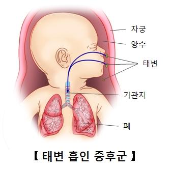 태변흡인증후군에걸린태아 및 자궁 양수 위치및 태아의 기관지 폐 위치