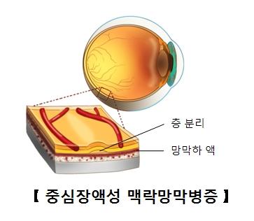 망막의후극부에액체가축적되어망막이박이되었음