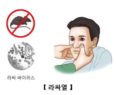 쥐로인해 라싸바이러스에 감염되 눈이 충혈된 남성