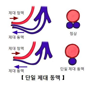정상적인제대동맥과단일제대동맥 그림 예시