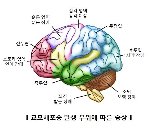 브로카영역(언어장애) 전두엽 운동영역(운동장애) 감각영역(감각이상) 두정엽 후두엽(시각장애) 소뇌(보행장애) 뇌간(발음장애) 측두엽등 교모세포종 발생 부위에 따른 증상의 예시
