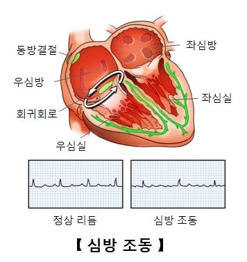 좌심방 좌심실 우심실 회귀회로 우심방 동방결절 위치 및 정상리듬 과 심방조동의 예시