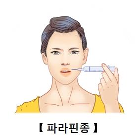 입술주변에 파라핀종으로 인해 주사를 넣고 있는 여성