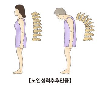 정상여자가서있는자세와척추모양및노인성척추후만증에걸린노인의자세와척추