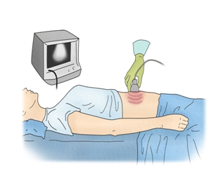 초음파검사를하고있는모습