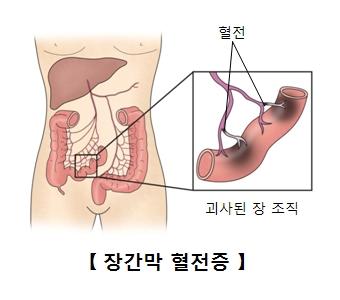 혈전 과사된 장 조직및 장간막 혈전증의 예시