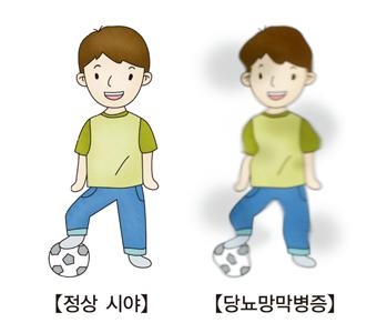 축구를 하구있는 남자아이의 정상시야 와 당뇨망막병증으로인해 시야가 흐트러진 비교의 예시