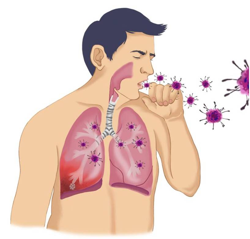 중동호흡기증후군 그림