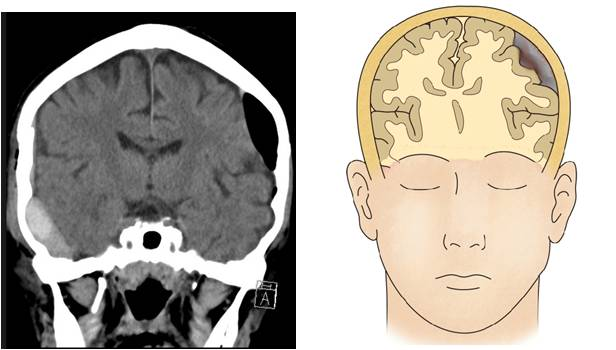 x-ray 로 본 기뇌증의 사진과, CT로 본 뇌 검사 모습