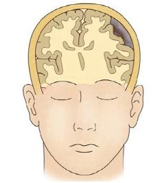 기뇌증 걸리 사람의 모습