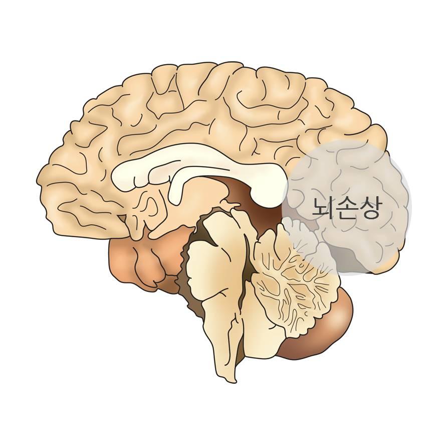 뇌손상 모식도