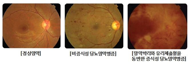 정상막막, 비증식성 당뇨막막변증, 망막박리와 유리체출혈을 동반한 증식성 당뇨망막병증 사진