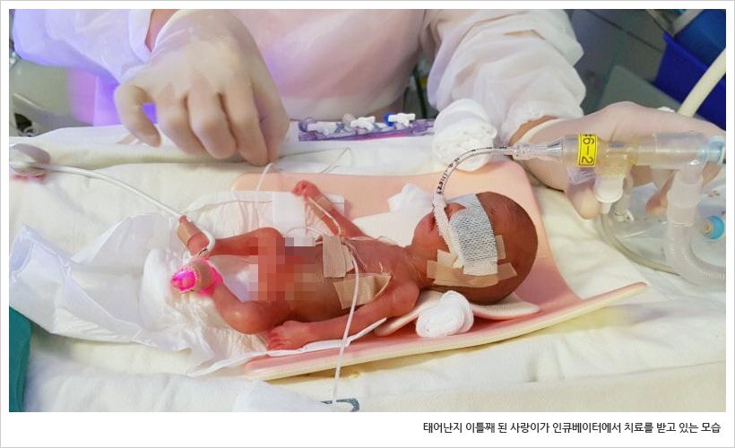 태어난지 이틀째 된 사랑이가 인큐베이터에서 치료를 받고 있는 모습